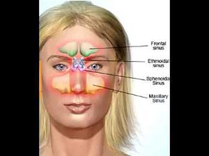 remedies for sinusitis